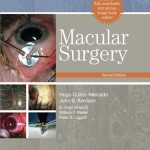 Macular Surgery, 2nd Edition