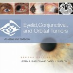 Eyelid, Conjunctival, and Orbital Tumors: An Atlas and Text, 2nd Edition