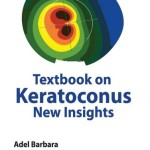 Textbook on Keratoconus: New Insights