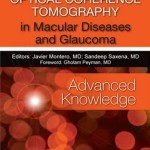 Optical Coherence Tomography in Macular Diseases and Glaucoma: Advanced Knowledge