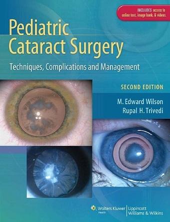 Pediatric Cataract Surgery 2