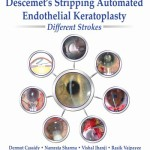 Descemet's Stripping Automated Endothelial Keratoplasty: Different Strokes