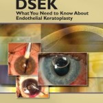 DSEK: What You Need to Know About Endothelial Keratoplasty