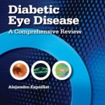 Diabetic Eye Disease: A Comprehensive Review