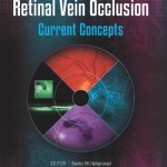 Management of Retinal Vein Occlusion: Current Concepts