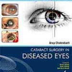 Cataract Surgery in Diseased Eyes