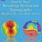 Step by Step® Reading Pentacam Topography (Basics and Case Study Series)