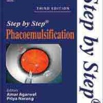 Step by Step Phacoemulsification
