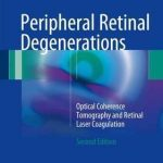Peripheral Retinal Degenerations : Optical Coherence Tomography and Retinal Laser Coagulation