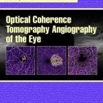 Optical Coherence Tomography Angiography of the Eye