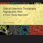 Optical Coherence Tomography Angiography Atlas : A Case Study Approach