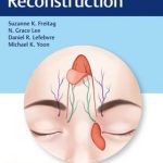 Eyelid Reconstruction