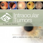 Intraocular Tumors: An Atlas and Text, 2nd Edition