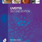 Uveitis, 2nd Edition