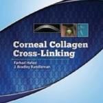 Corneal Collagen Cross Linking