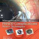 Management of PHACO Complications: Newer Techniques