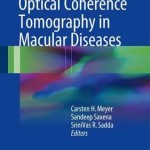 Spectral Domain Optical Coherence Tomography in Macular Diseases 2016