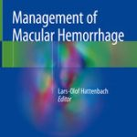 Management of Macular Hemorrhage