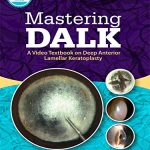 Mastering DALK : A Video Textbook on Deep Anterior Lamellar Keratoplasty