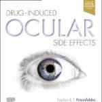Drug-Induced Ocular Side Effects : Clinical Ocular Toxicology