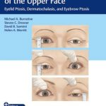 Ophthalmic Plastic Surgery of the Upper Face : Eyelid Ptosis, Dermatochalasis, and Eyebrow Ptosis